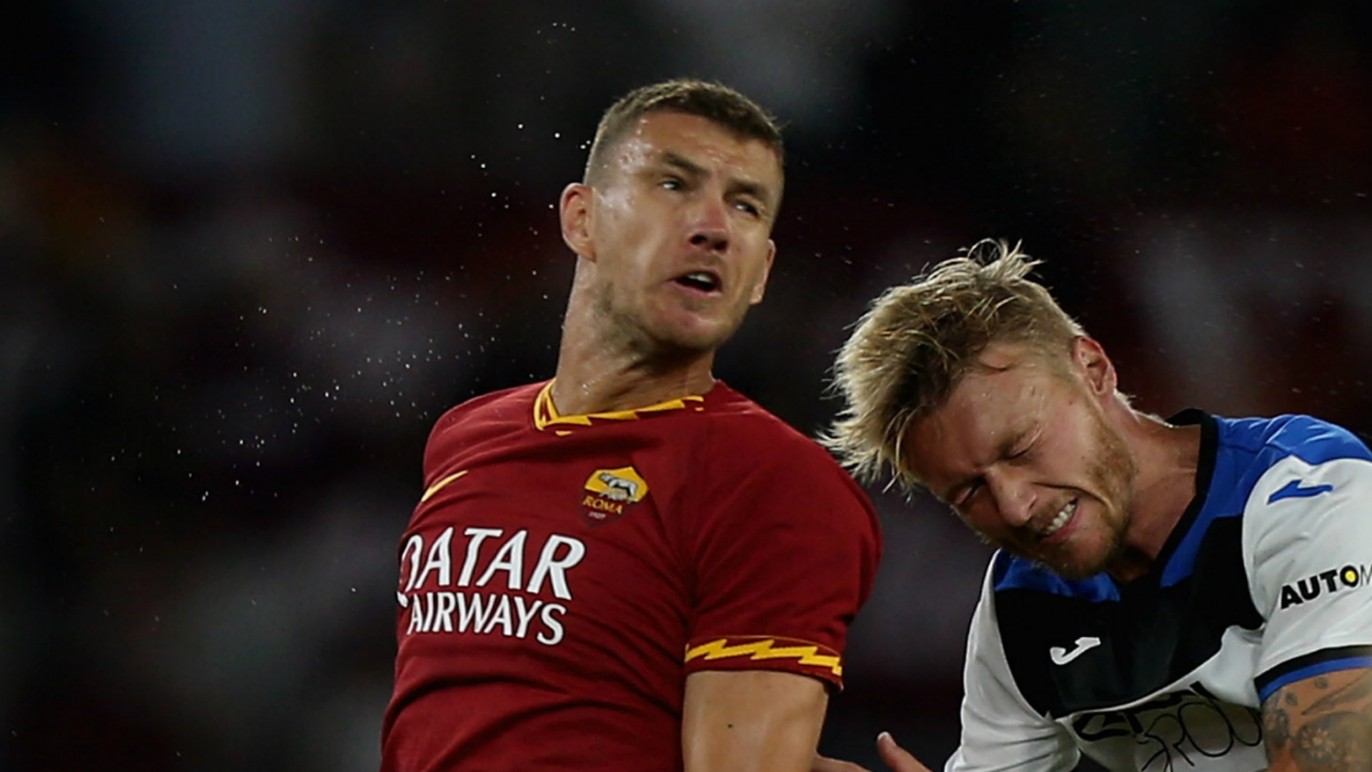 Dzeko to miss Sampdoria trip with fractured cheekbone